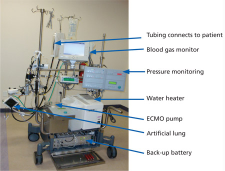 what_is_ecmo