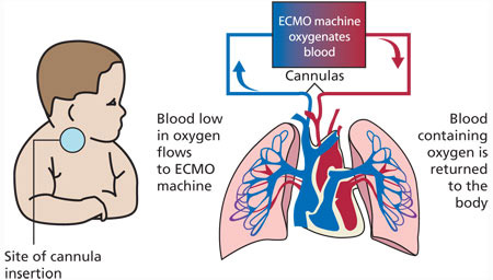 what_is_ecmo_veno_arterial